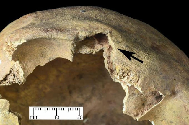 Grizzly discovery of an arrow through the eye sheds light on horrific injuries caused by medieval arrows