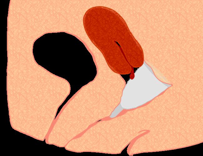 copa menstrual muy dentro