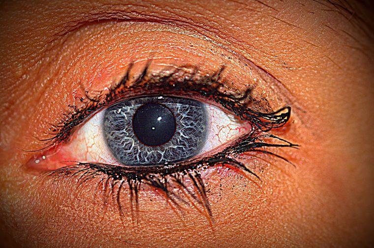 lesion ocular comun