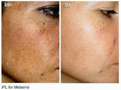 tratamientos-contra-manchas-oscuras-piel