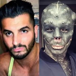 """Homem se transforma em """"alienígena negro"""" ao ter o nariz e orelhas removidas"""