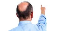 https://economicfinancialpoliticalandhealth.blogspot.com/2017/05/do-not-believe-because-of-bald-natural.html