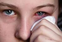 Alergias en los ojos pueden ser provocadas por las estaciones del año