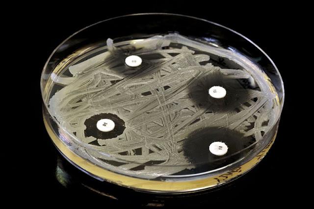 oporność na antybiotyki