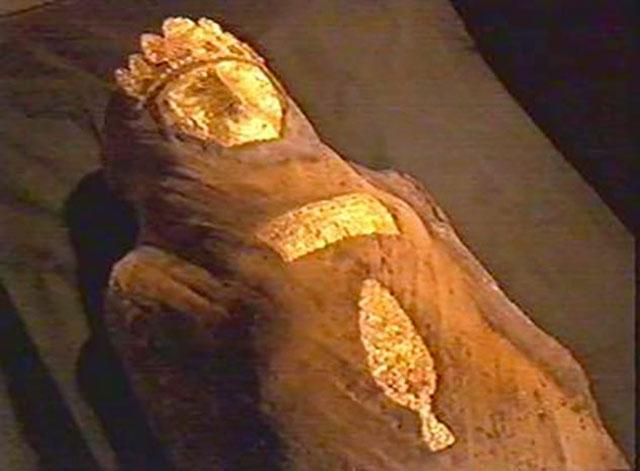 Mumi Palsu yang Patah Tulang