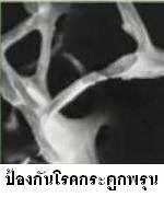 โรคกระดูกพรุนป้องกันได้
