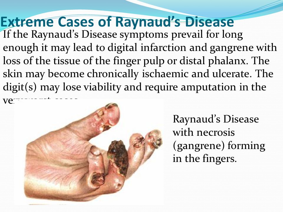 Image result for Raynaud's
