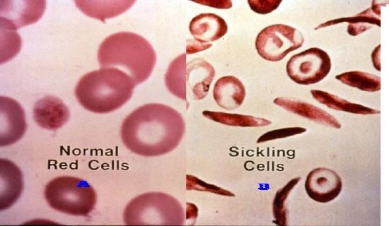 Mengapa sel tersebut dapat mengalami perubahan ? Penyebabnya adalah terpapar zat karsinogenik