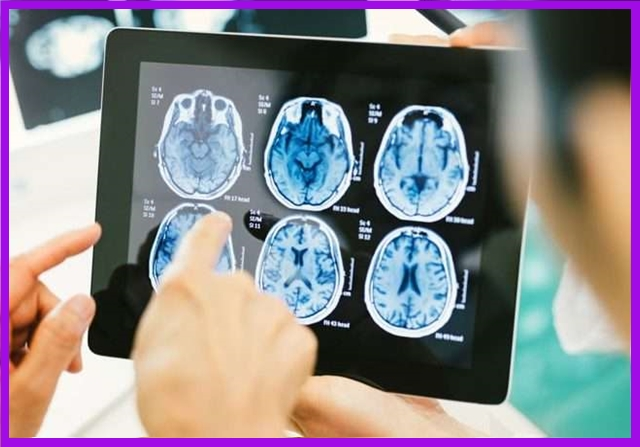 kenali penyebab kanker otak