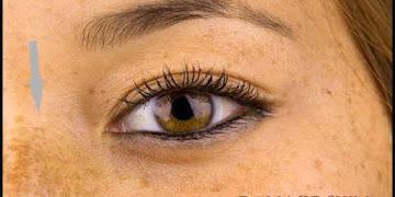 10 Hal Sepele Penyebab Rusaknya Kulit Wajah