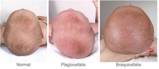Deformações da Cabeça do Bebé – Plagiocefalia, o que fazer?