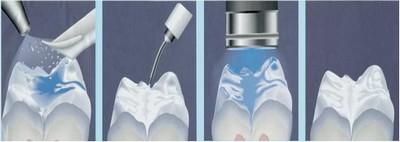 dişlere fissür kaplanması