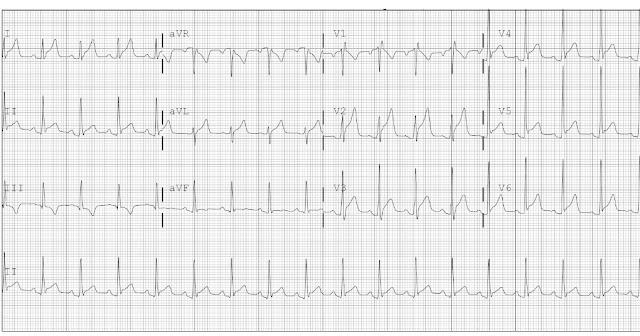 pericarditis EKG