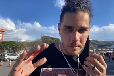 Extremista bolsonarista diz que se  pudesse mataria cinegrafista da GloboNews