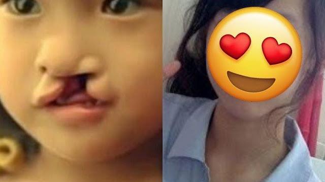 Dibuang Ortu karena Bibirnya Sumbing, Gadis Ini Kini Sukses & Berubah Cantik!