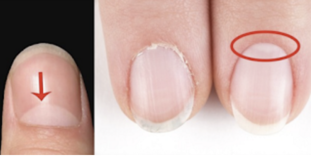 If You Have The Half Moon Shape On Your Nails, This Is What It Means.