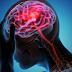 Proteína no sangue pode ajudar no tratamento e reabilitação do AVC