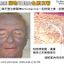 臨床病例 Amiodarone引起的皮膚色素沉著 (Blue-Gray Hyperpigmentation After Amiodarone Treatment)