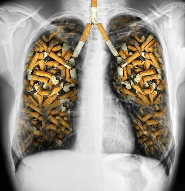https://www.researchgate.net/publication/299775809_From_smoking_to_COPD_-_current_approaches?ev=prf_pub