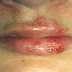 How To Treat Herpes Problem in this environment