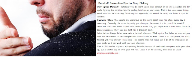 Home Remedies For Dandruff- Stop Flaking