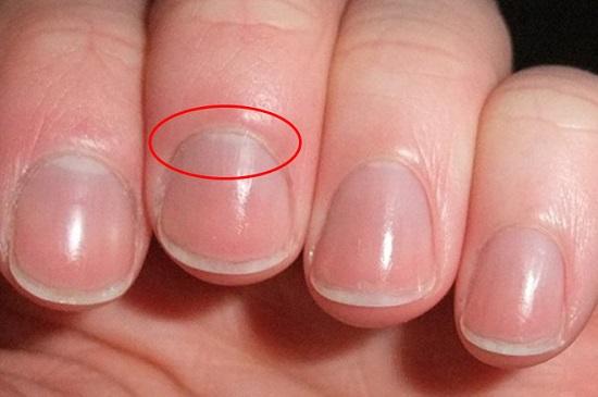 6 dấu hiệu lạ ở tay nói lên sức khỏe của bạn