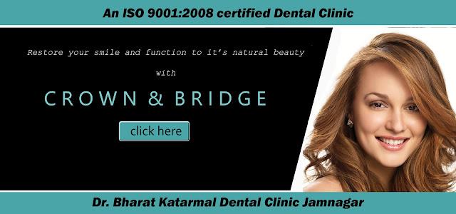 ceramic crown and bridge for tooth at Jamnagar