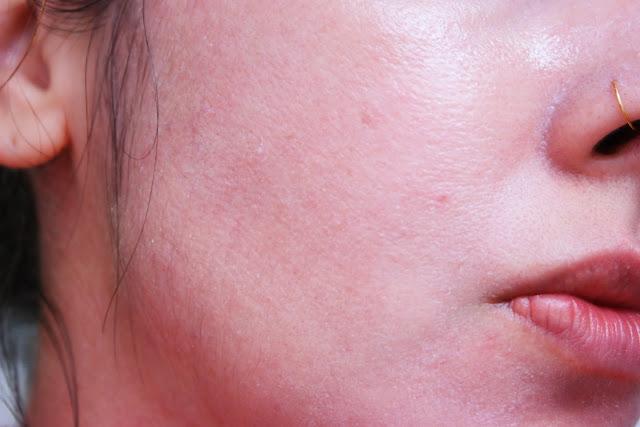 peeling de consultório, ácidos, vitamina c , manchas de pele, peeling abrasivo,máscara facial, melasma, manchas de hormônios