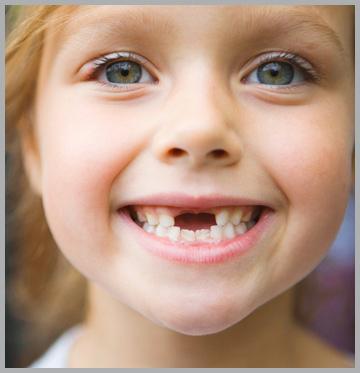 https://1.bp.blogspot.com/-t0R_hYkMtoo/WKX55_YQhoI/AAAAAAAAAVE/FJtQhI7GTjQH12O_s4HtGg5PskfqraJ5gCLcB/s1600/Childrens-Teeth.jpg