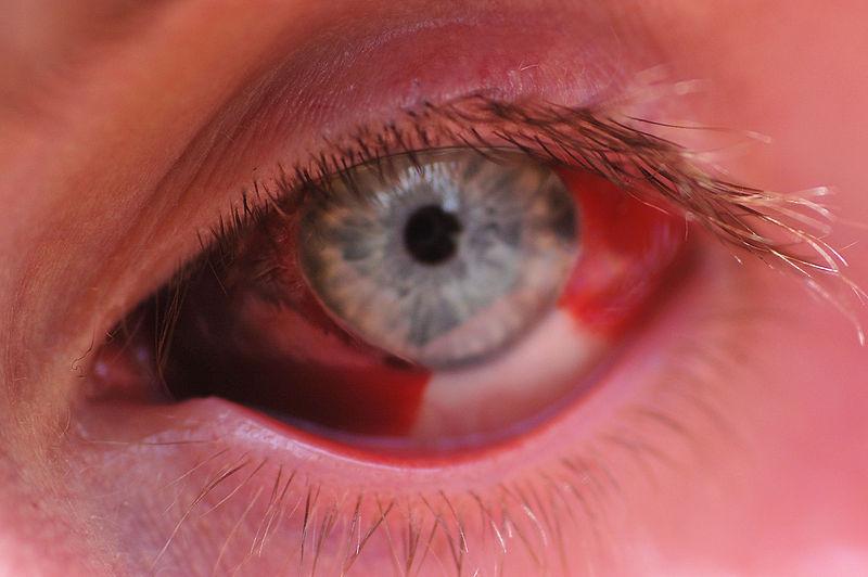 derrame en el ojo derecho con dolor