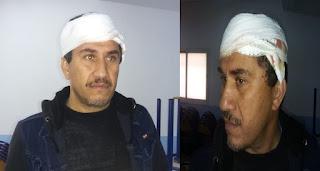 المحمدية :تلميذ يرشق مدير ثانوية بحجارة ويصيبه بجرح غائر