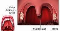 Cara Menyembuhkan Kanker Radang Tenggorokan   Aisha Herbal