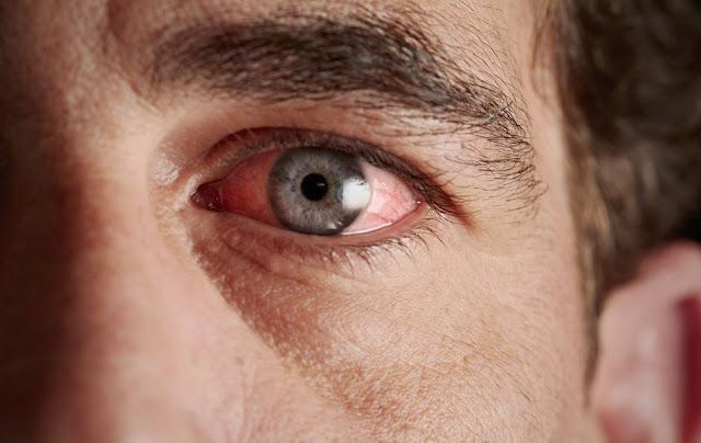 Cara Merawat Kesehatan Mata dengan Mudah