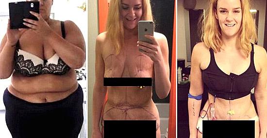 Mulher emagrece mais de 90 quilos e fica irreconhecível