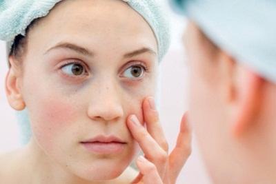 5 Bahaya Penyakit Lupus Tanpa Pengobatan