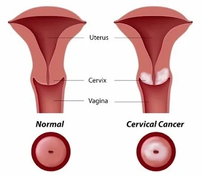 cervical cancer chemotherapy