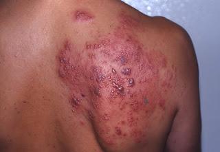 penyakit yang disebabkan oleh virus, Herpes