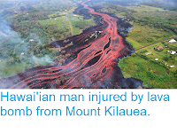 https://sciencythoughts.blogspot.com/2018/05/hawaiian-man-injured-by-lava-bomb-from.html
