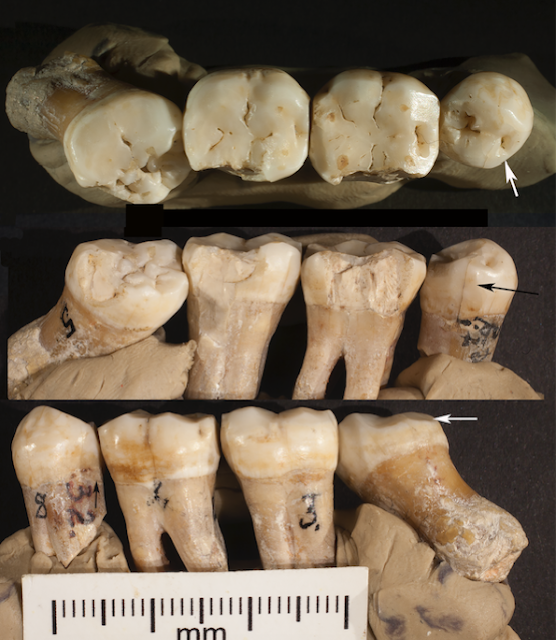 Analysis of Neanderthal teeth marks uncovers evidence of prehistoric dentistry