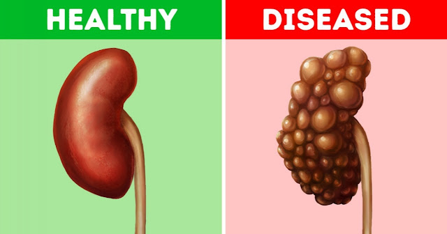 Habits That Damage Your Kidneys