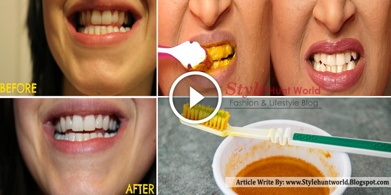 DIY HOME BLEACHING: WHITEN YOUR TEETH WITH TURMERIC | Blog ... |Turmeric Teeth Before And After