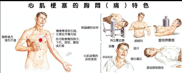 心肌梗塞的胸悶、胸痛多在運動後產生