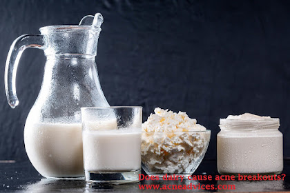 Answering Common Question: Does Dairy Cause Acne?