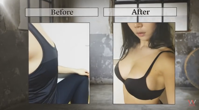 Wonjin Breast Surgery Specialized Hospital Real Result