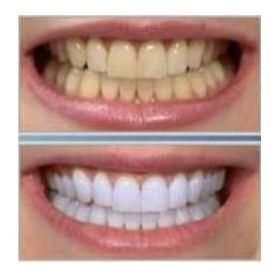 5 tips para una sonrisa blanca y deslumbrante