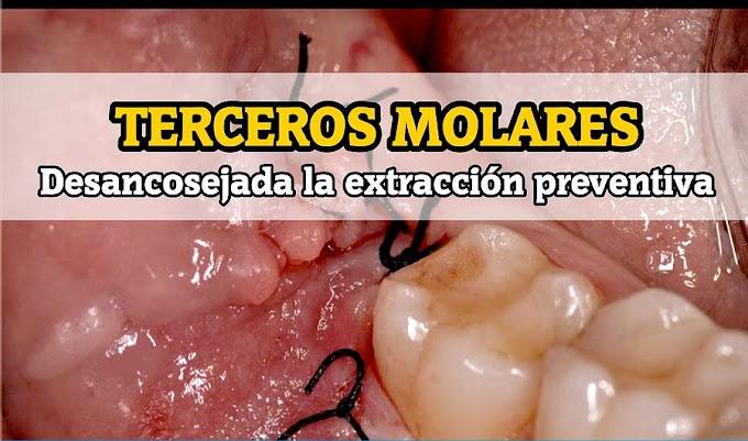 MUELAS DEL JUICIO: Desaconsejada la extracción preventiva generalizada - Dr. Arturo Bilbao (SECOM)