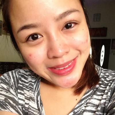 acne recovery roaccutane singapore