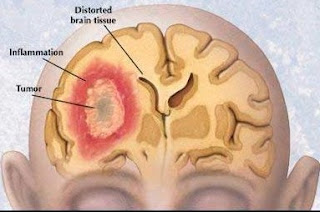 What is Brain Cancer and How the Symptoms