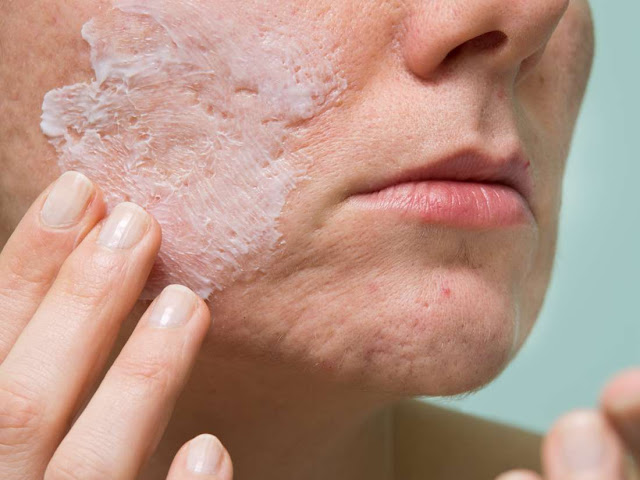 How To Treat Acne with Benzoyl Peroxide