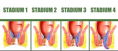 Stadium Penyakit Wasir